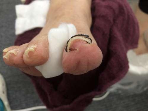 巻き爪 予備矯正 病院 ツメフラ コットン