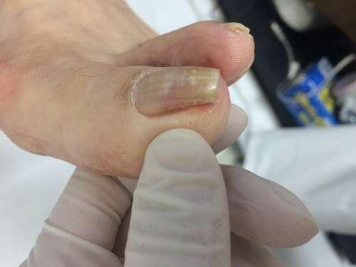 巻き爪 片側の巻きが強い