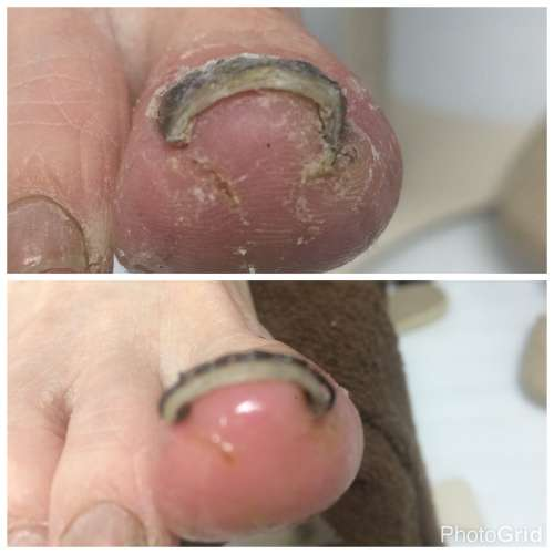 多摩 巻き爪 病院 ワイヤー コットン 陥入爪