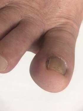 巻き爪 深爪 橋本 八王子 巻き爪矯正 病院 コットン 相模原