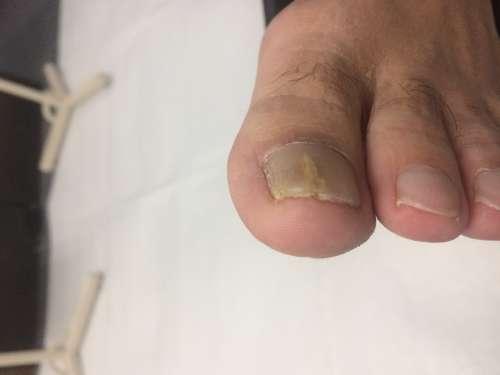 巻き爪 90度の食い込み 爪も厚い 橋本 八王子 巻き爪矯正 病院 コットン 相模原