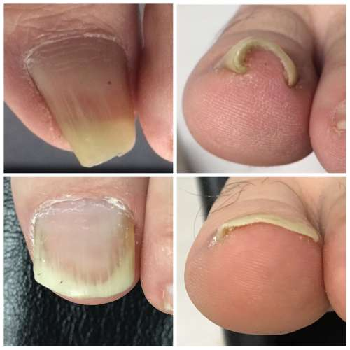 多摩 巻き爪 病院 コットン 陥入爪