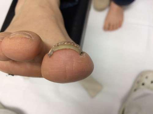 橋本 八王子 巻き爪 矯正 病院 コットン 相模原 巻き爪ブロック