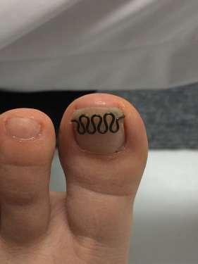 巻き爪ブロックからツメフラへ 橋本 八王子 巻き爪 矯正 病院 コットン 相模原 巻き爪ブロック
