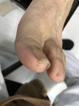 調布 巻き爪