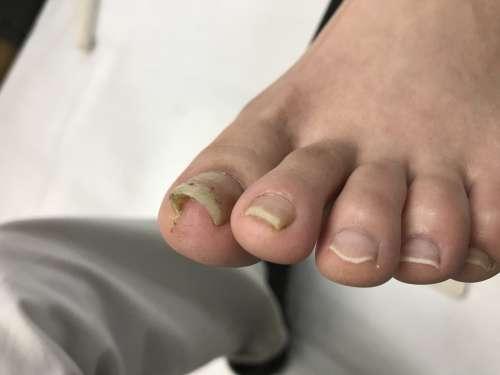 厚木 コットン 巻き爪 巻き爪 病院 陥入爪