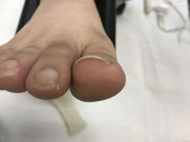 巻き爪 調布 病院 コットン
