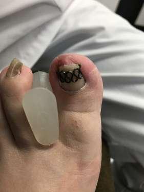 調布 巻き爪 病院 コットン 陥入爪