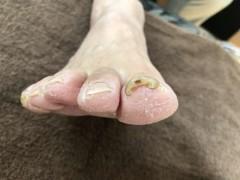 巻き爪 調布 コットン 病院
