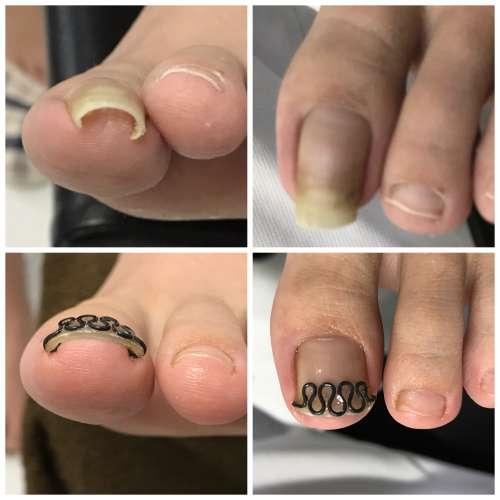 巻き爪 矯正 病院 コットン